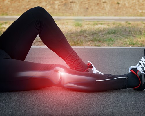 PODCAST: Iliotibial Band Syndrome